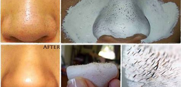 How-To-Remove-Your-Problem-With-Blackheads-And-Minimize-Your-Pores-In-Natural-Way