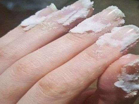 Maseaza unghiile cu bicarbonat de sodiu. Vei fi uimita de rezultate
