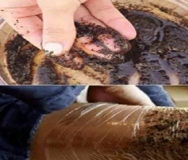 Si-a infasurat picioarele cu folie, de 2 ori pe saptamana, folosind aceasta pasta. Dupa o saptamana celulita a inceput sa dispara