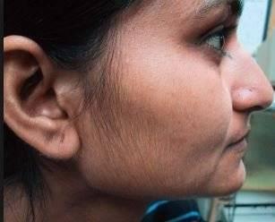 Reteta naturala care te scapa de parul facial pentru totdeauna, in doar 15 minute