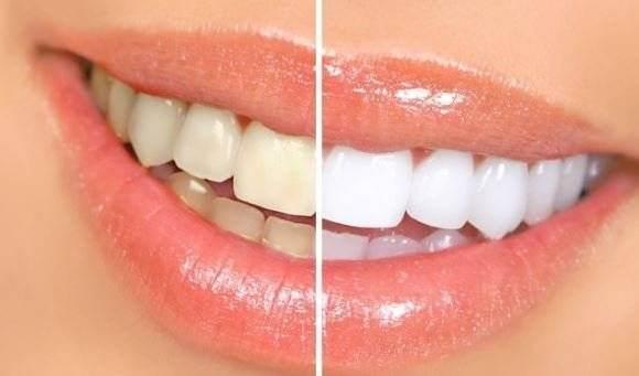 Apa de gura care indeparteaza tartrul dentar. O poti prepara la tine acasa