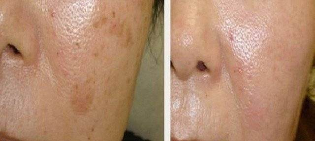 try-simple-trick-get-rid-brown-spots-face-skin