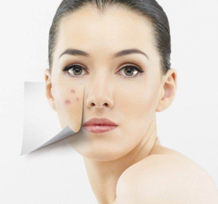 Este fondul de ten periculos pentru tenul acneic?