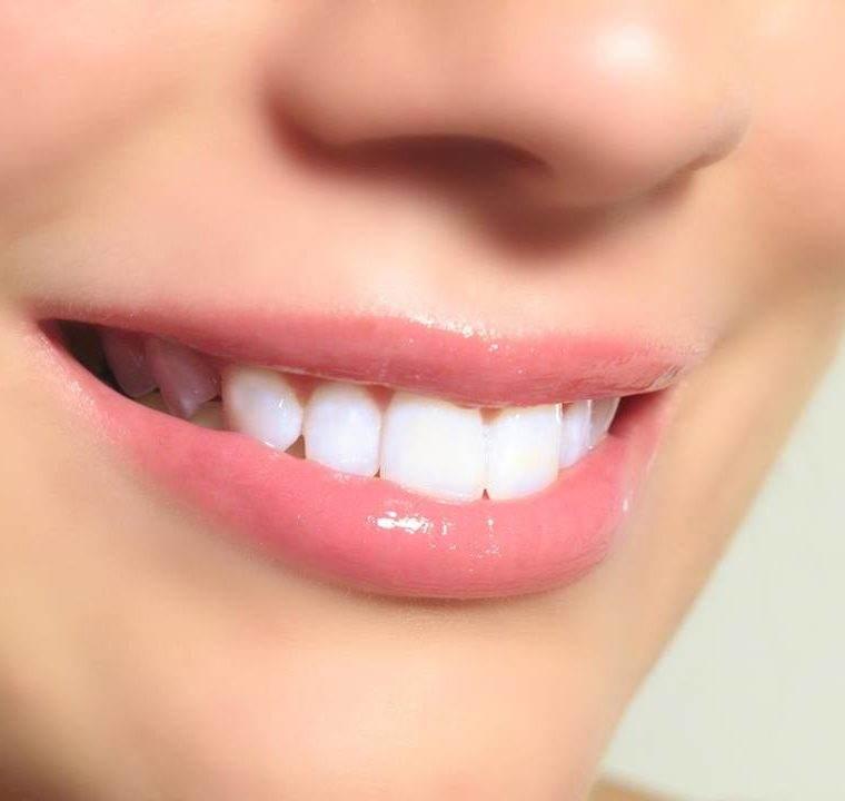 Cele mai bune metode de a-ti albi dintii acasa