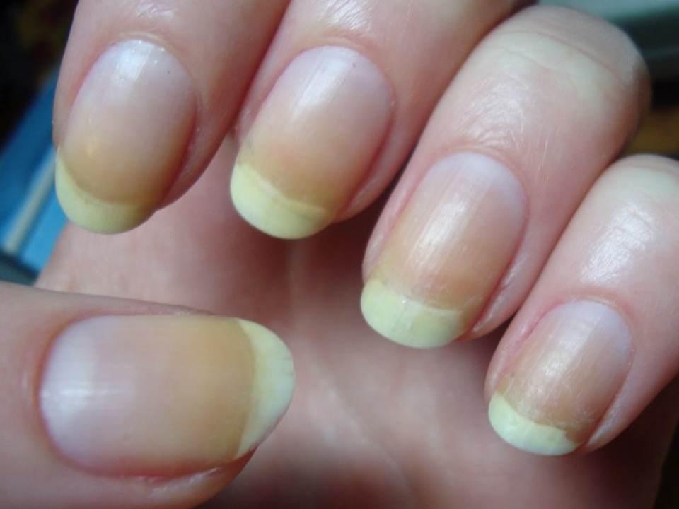 eczema sub san tratament sinuzita cronica