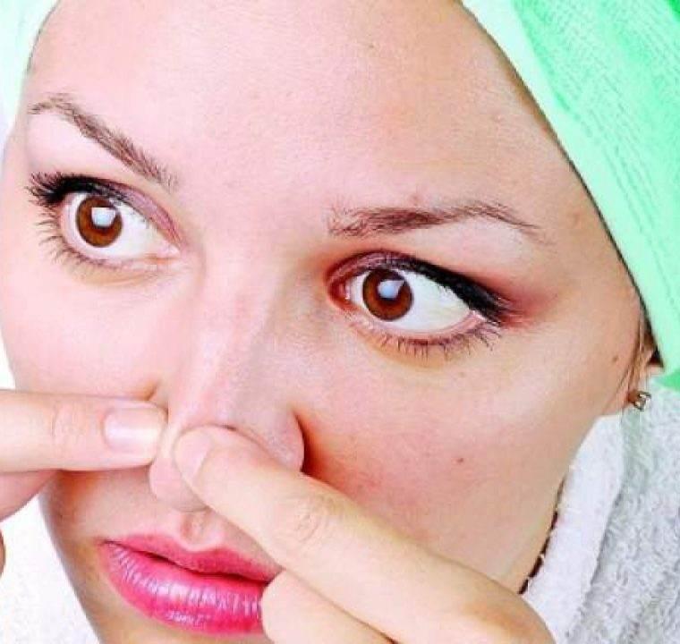 Cum sa scapi de acnee cu ajutorul otetului! Ce alte intrebuintari mai are acest ingredient