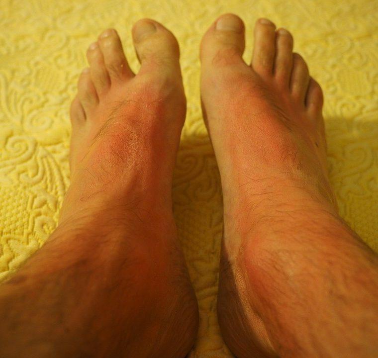 De ce apar durerile de picioare! Cum poti sa le tratezi