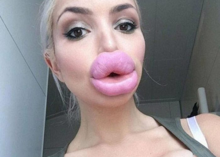 Imagini socante gasite pe Instagram! Mai multe bloggerite au exagerat cu acidul in buze iar rezultatele sunt dezastruase